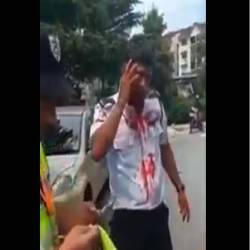 (Video) Nepali security guard assaulted for clamping car