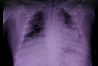 Lung damage in Covid dead may shed light on 'long Covid'