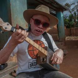 Malawi's musician with albinism, Lazarus Chigwandali, practicing his guitar and drum. — AFP Relaxnews