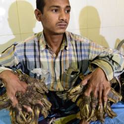 Abul Bajandar of Bangladesh, dubbed Tree Man for the massive bark-like warts on his hands and feet, sits at the Dhaka Medical College Hospital in January 2016. — AFP