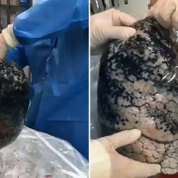 The image of a dead smoker's lungs which has gone viral.