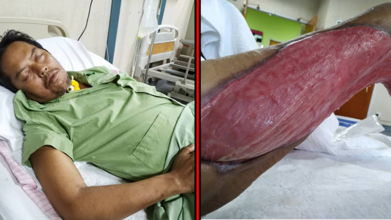 This man spends RM3k a month because he suffers from a flesh-eating disease