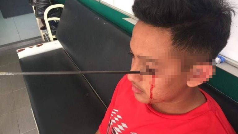Archery mishap: Education Ministry investigating if SOP was followed