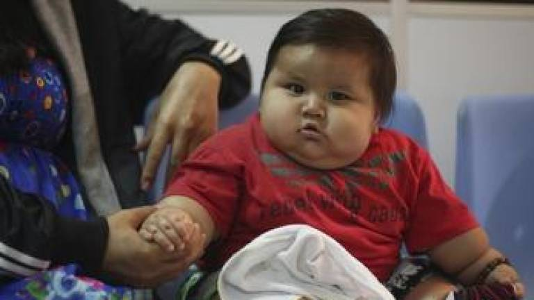 Childhood obesity a growing health crisis in Malaysia