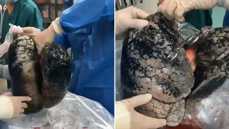 Image of dead smoker's darkened lungs goes viral