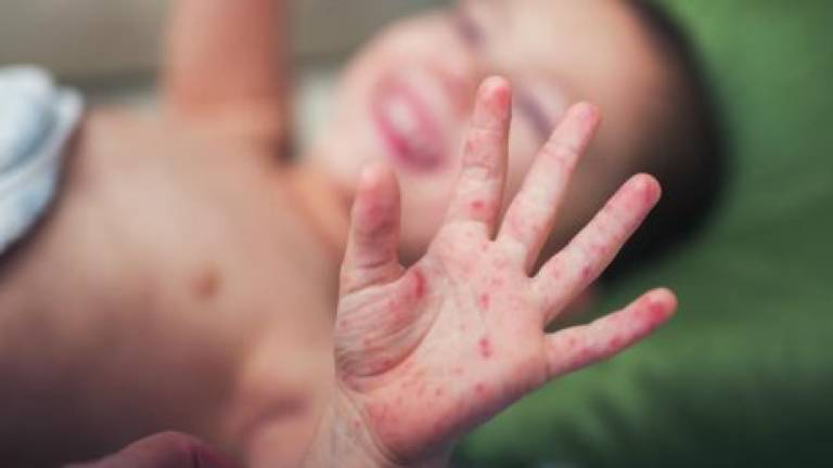 Measles death toll in Samoa rises to 15: Unicef
