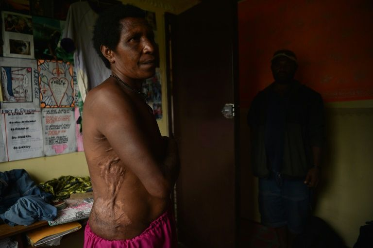 Mother-of-two Rachel shows the scars from wounds inflicted on her in April 2017 when she was accused of sorcery and tortured with hot machetes, spades and rods for a full day by people she knew in the Tsak Valley in the Highlands of Papua New Guinea. — AFP